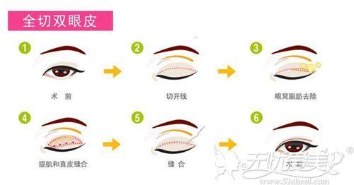 全切双眼皮手术方法