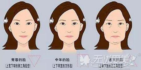 随着年龄增长会出现面部下垂的现象