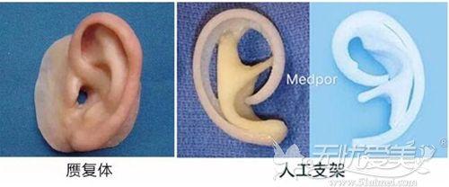 耳再造手术材料