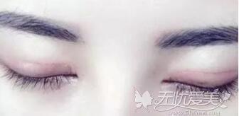 双眼皮手术后疤痕增生