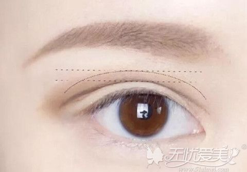 双眼皮手术正常宽度标准