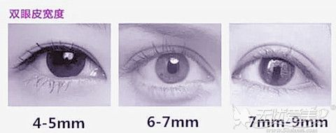 双眼皮手术宽度效果图