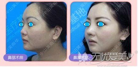 中山美南华硅胶隆鼻案例