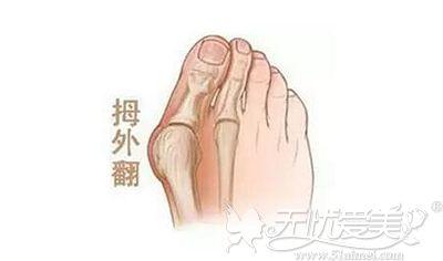 大脚骨出现的症状