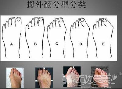 大脚骨的出现的不同类型