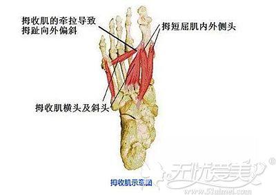脚部拇收肌的示意图
