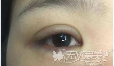 双眼皮术后流泪