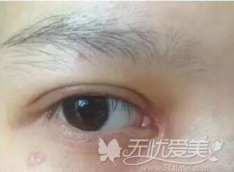 开眼角后术后流泪