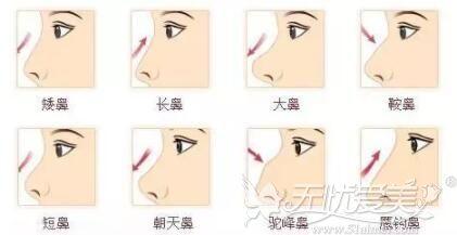 鼻部常见的几种形态