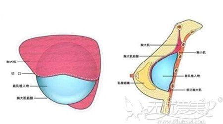 假体隆胸手术的方法