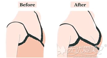 假体隆胸手术做出丰满线条