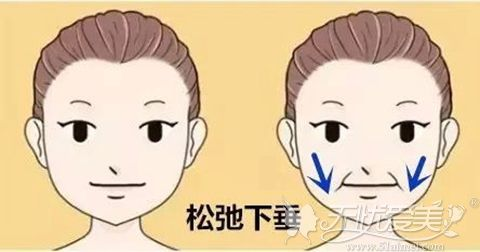 青春支架面部提升术