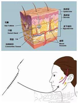 青春支架面部提升除皱术的原理