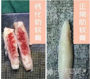 肋软骨钙化后形态