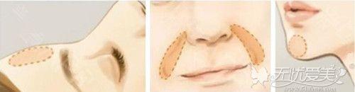 韩式面部脂肪填充可以注射部位