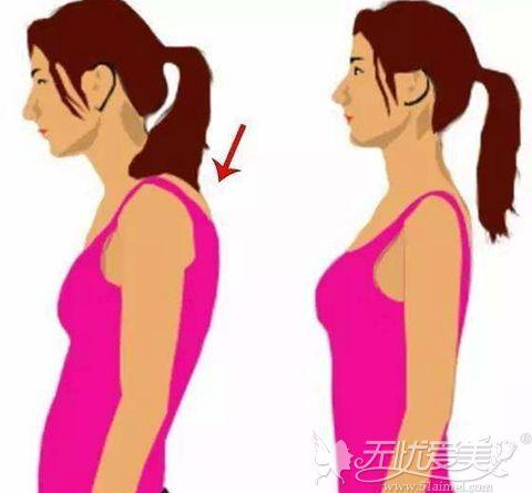 肩膀肥厚 可以吸脂吗
