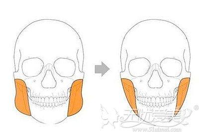 咬肌的位置和大小的区别
