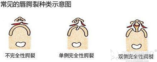 常见的唇裂形状