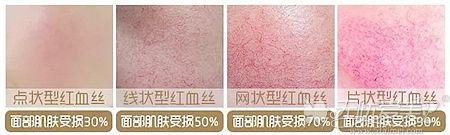 面部红血丝分布的多种类型