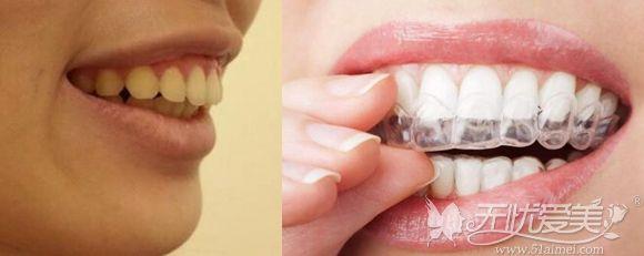 牙性原因的凸嘴