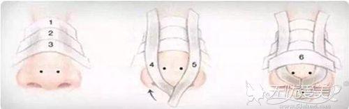 鼻子的固定方法