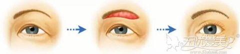 提眉术矫正上睑下垂