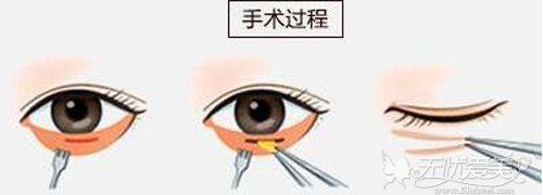 内路法祛眼袋的手术切口位置