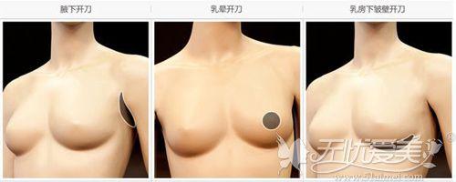 假体隆胸三种手术方法切口位置