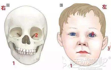 下颌角一大一小不对称