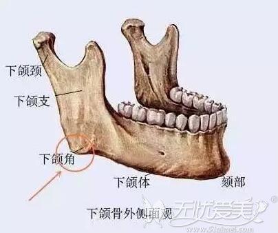 下颌骨角部骨性肥