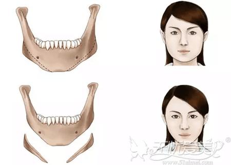 下颌角切除手术前后