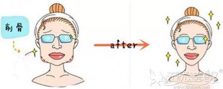 下颌角削骨手术前后