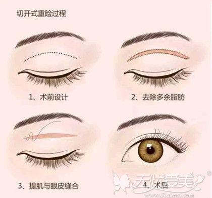 切开式双眼皮手术过程