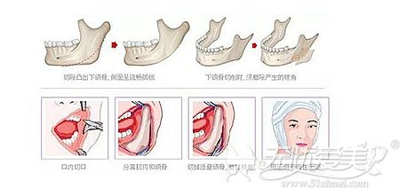 下颌角手术方法解析