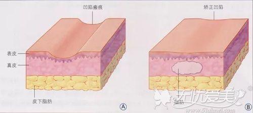 凹陷性疤痕形成原因