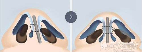 鼻孔不对称导致术后隆鼻术后效果不好