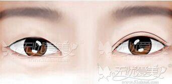 眼睛一单一双做双眼皮
