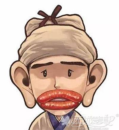 厚唇也就是我们常说的香肠嘴
