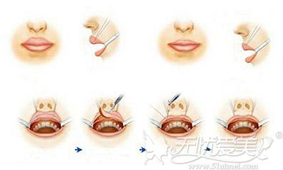 厚唇改薄手术的原理