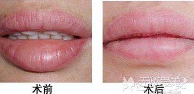 厚唇改薄术后效果