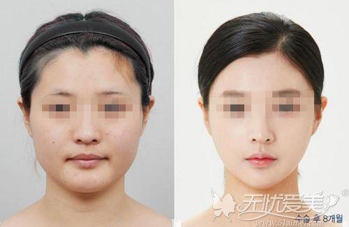 上海美联臣下颌角真人对比案例