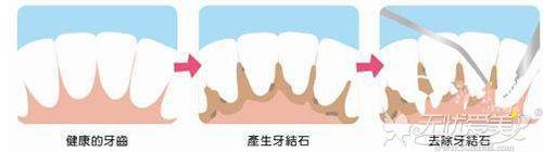 洗牙的原理过程