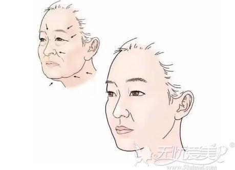 面部除皱的方法