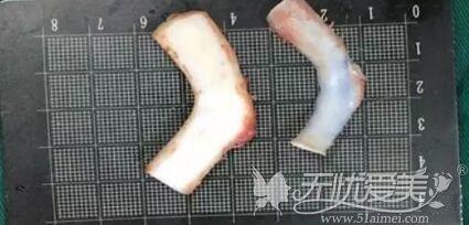 隆鼻失败修复二次使用肋软骨
