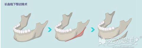 长曲线下颌角截骨术