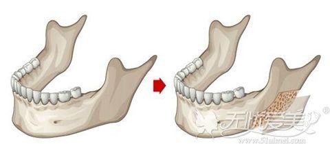 下颌角外板手术