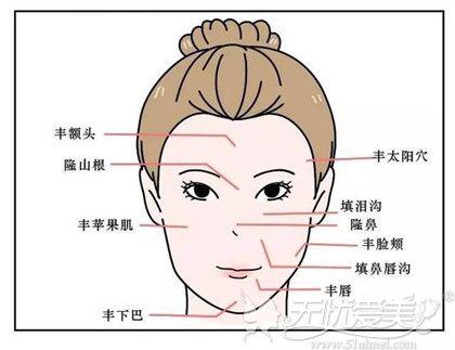 玻尿酸可以注射的面部位置