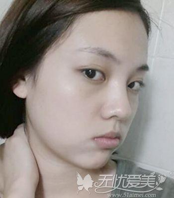 在韩国原辰做双眼皮手术+面部轮廓手术前