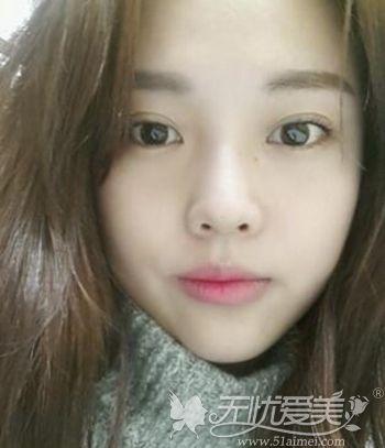 在韩国原辰做双眼皮手术+面部轮廓手术后半年