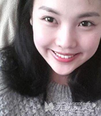在韩国原辰做双眼皮手术+面部轮廓手术后3个月